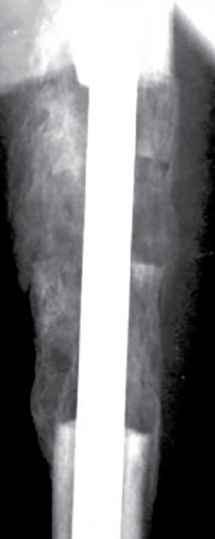 Percutaneous bone