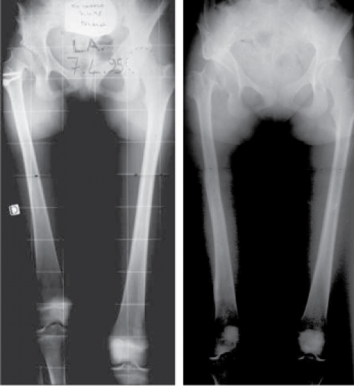 The hip maybe unstable (defect of coverage of the hip), requiring surgery to cover and protect the hip